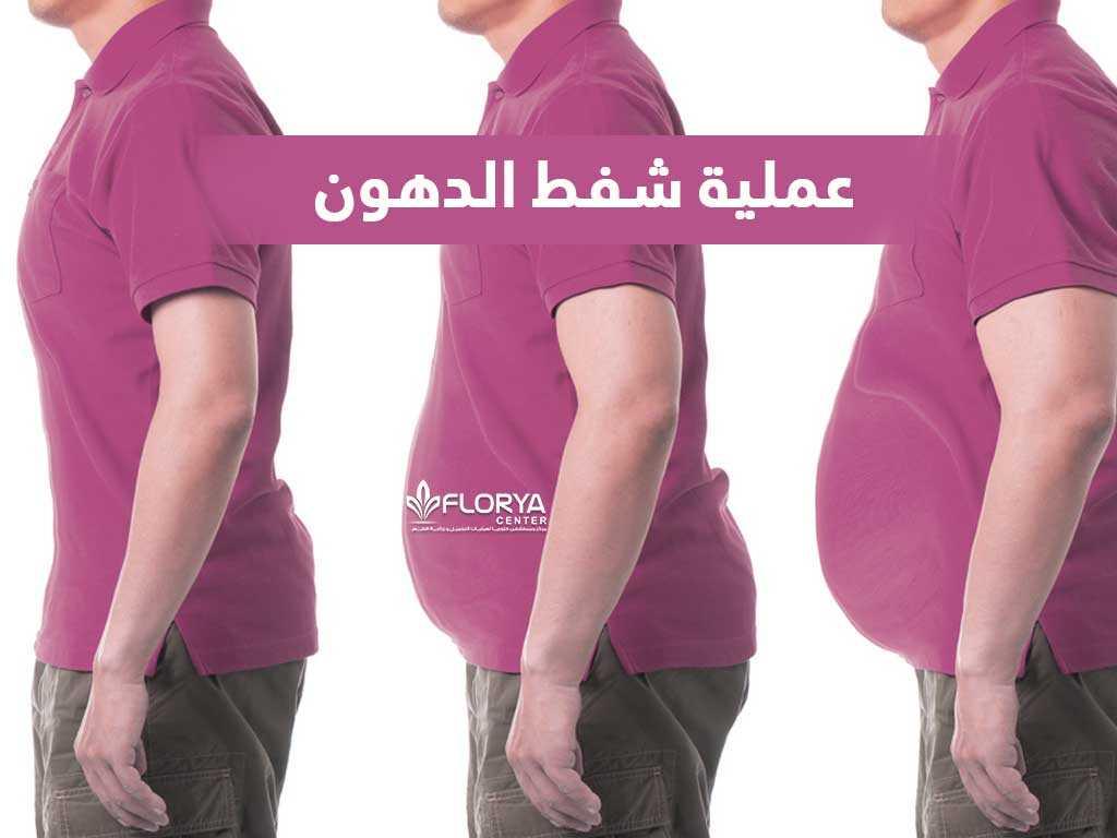 مركز د/ حلمى سليمان لجراحات التجميل